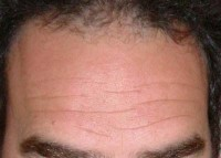 body parts-forehead